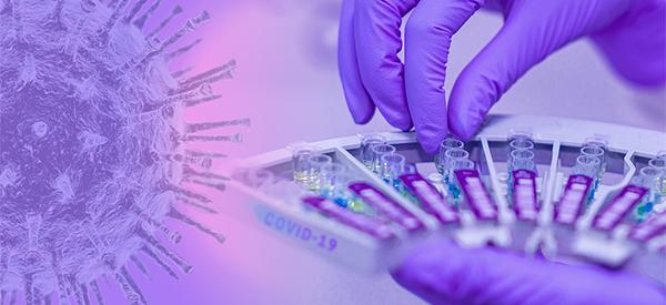 seroloska dijagnostika covid-19 infekcije