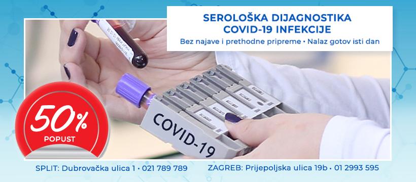 Serološko testiranje na Covid-19 uz popust